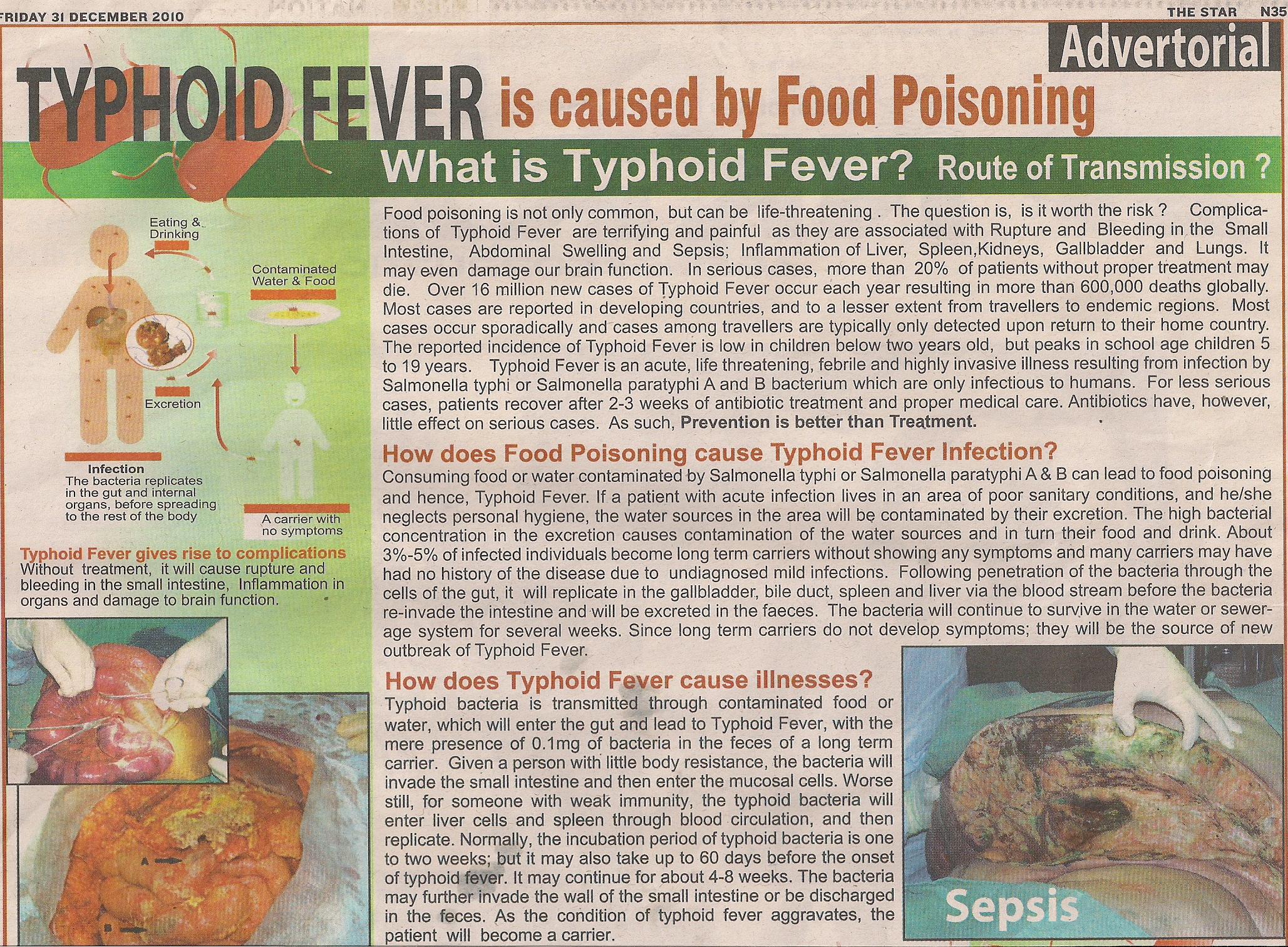 Typhoid microbe