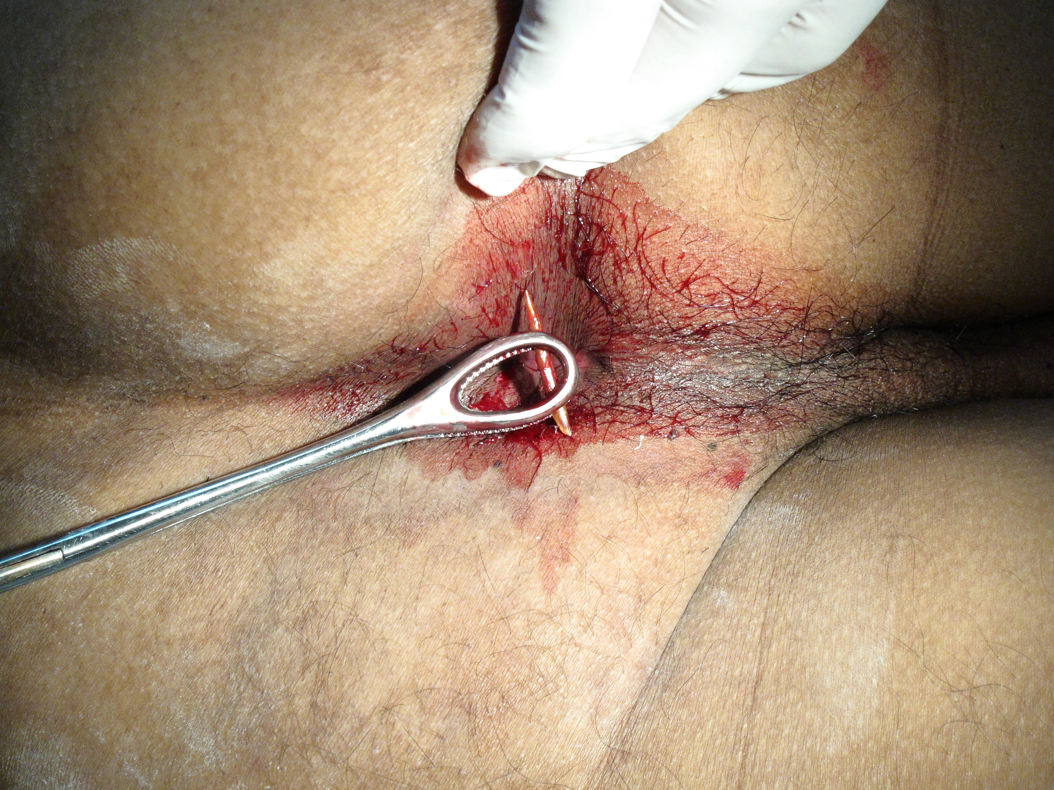 image Xxl cavernous anal speculum gape and fisting
